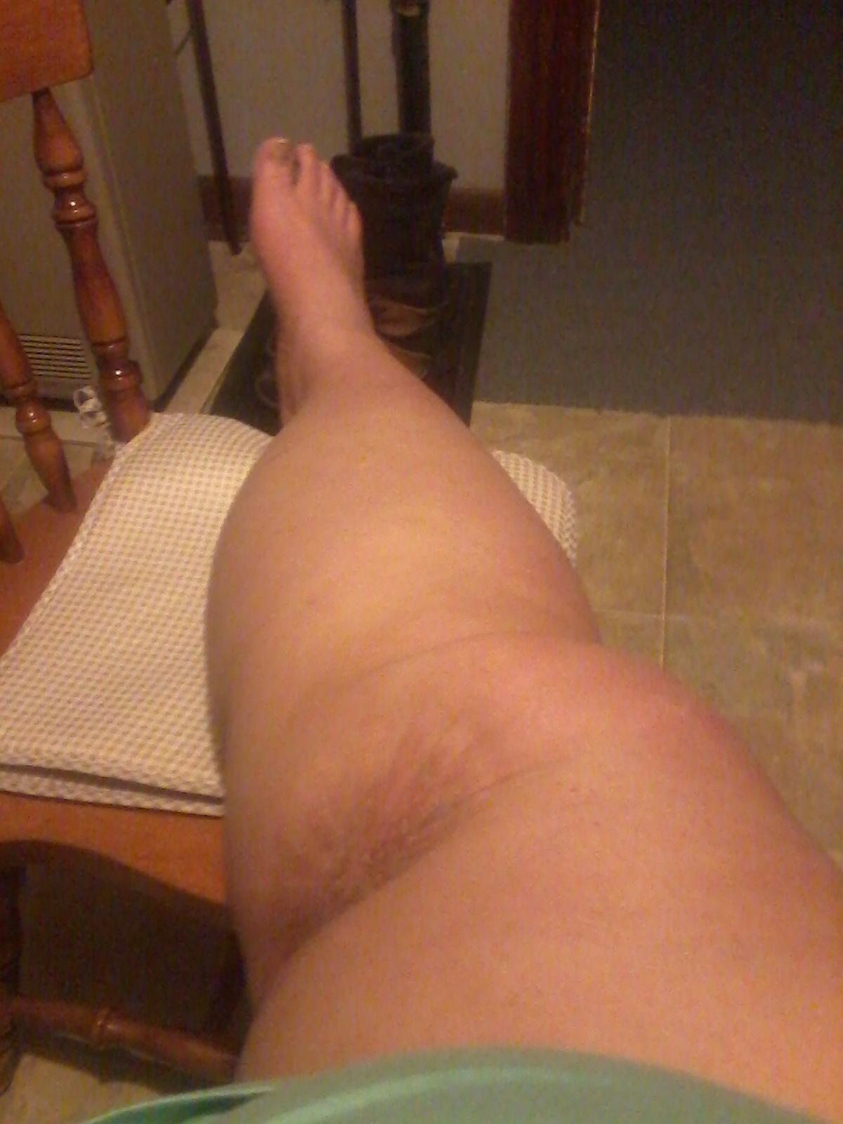 My ugly leg.