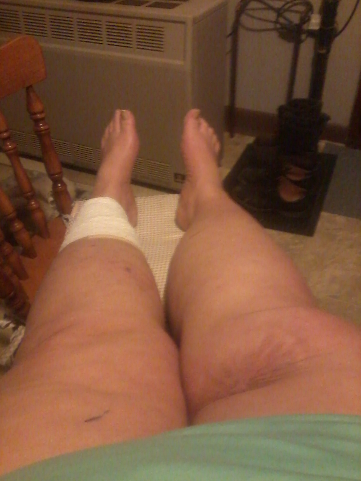 This shows my two legs, the right one scarred from my two operations, the left one still healing from my recent surgery.