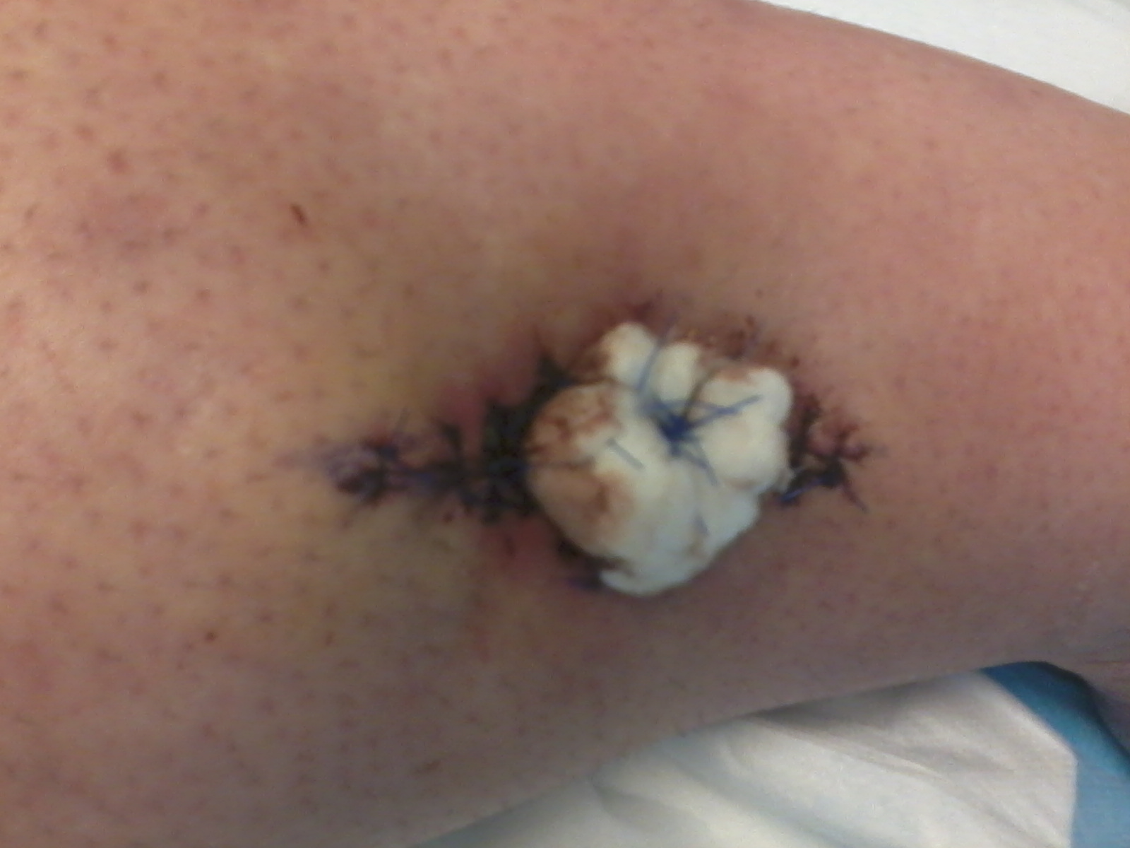 This is a picture of my leg where I had my recent surgery. Gross, huh?