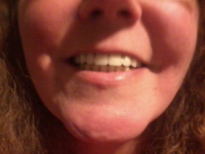 This is me smiling while wearing my false teeth.