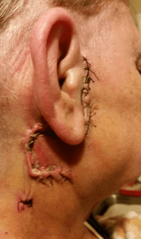 Mom's ear after her surgery