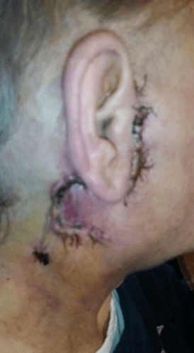 Mom's ear immediately after her surgery